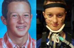 13 Year Old Boy Becomes Paralyzed from Neck Down After Gardasil HPV Vaccine