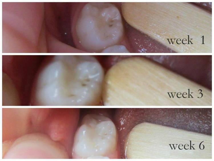 cavities-healing